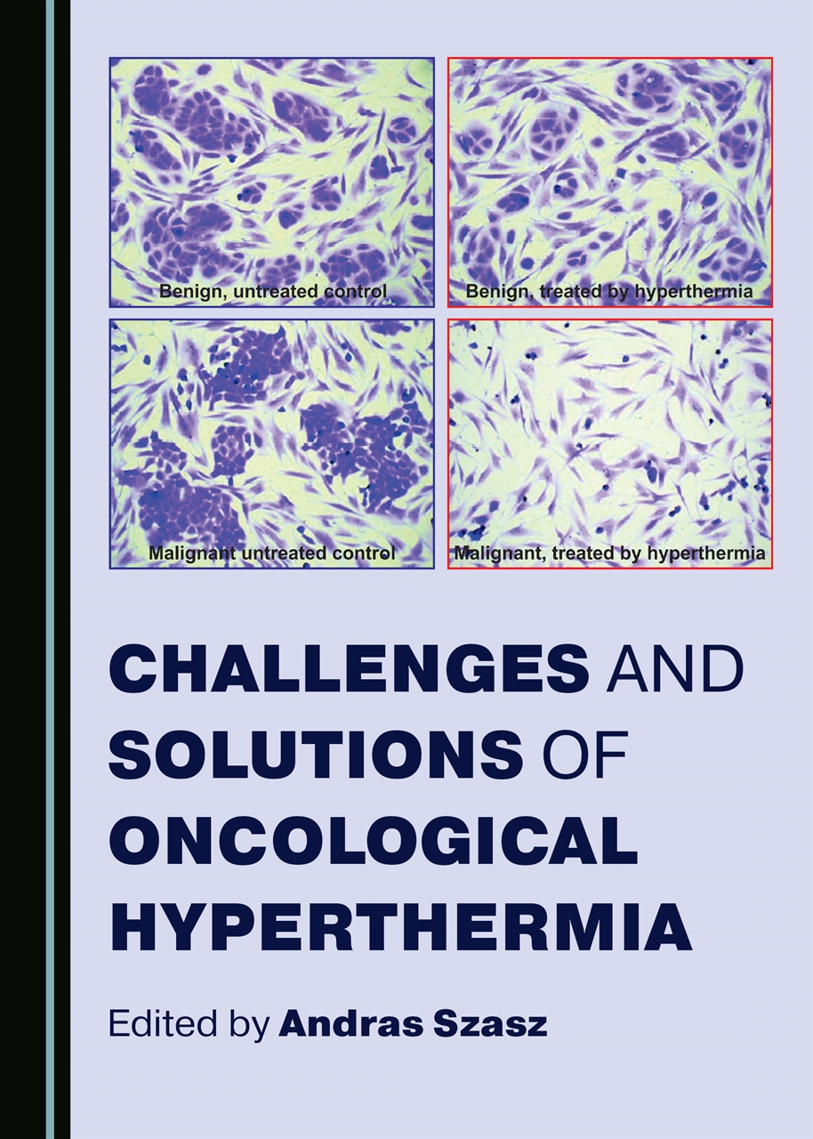 Challanges and Solutions of Oncological Hyperthermia book cover